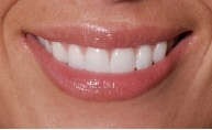 Smile Dental Studio, LLC in Rockville MD